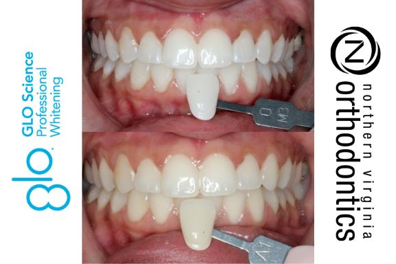 GLO Whitening before & after