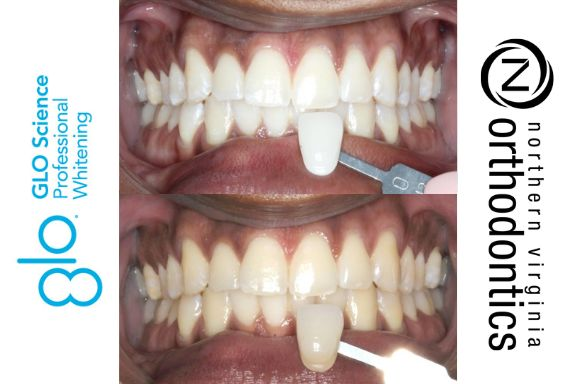 GLO Whitening before & after.