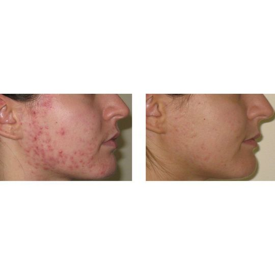 Before & After Advanced Nutrition Programme Skin Accumax