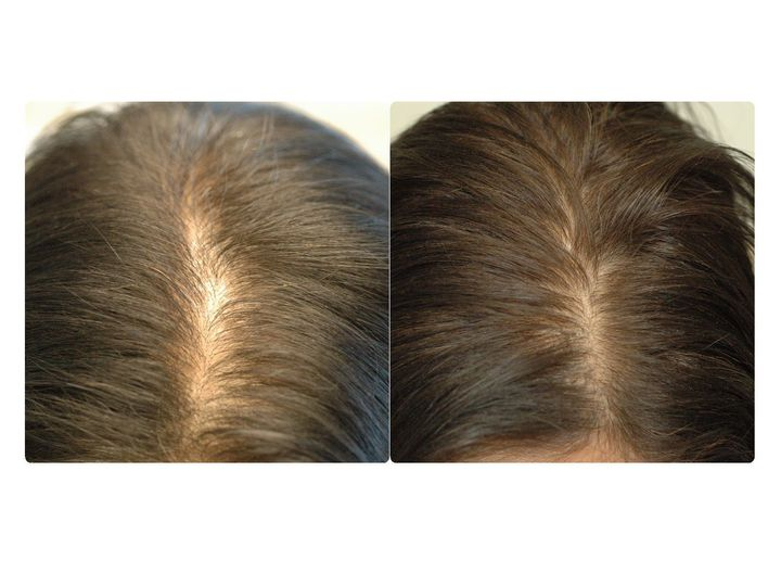 Before & After PRP Treatment to the Scalp