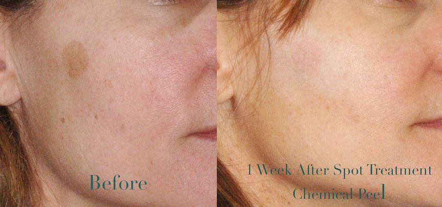 Before & After Chemical Peel Spot Treatment
