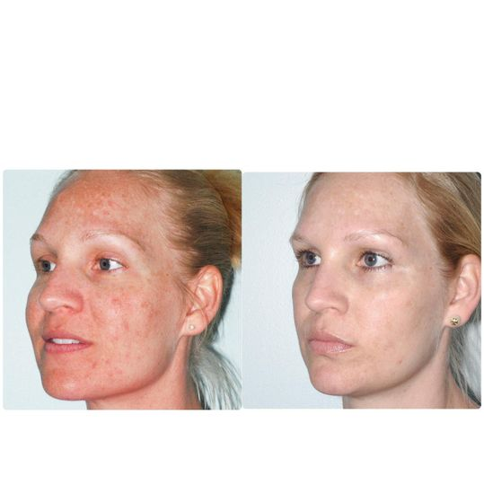 Before & After Photofacial and Light Chemical Peel
