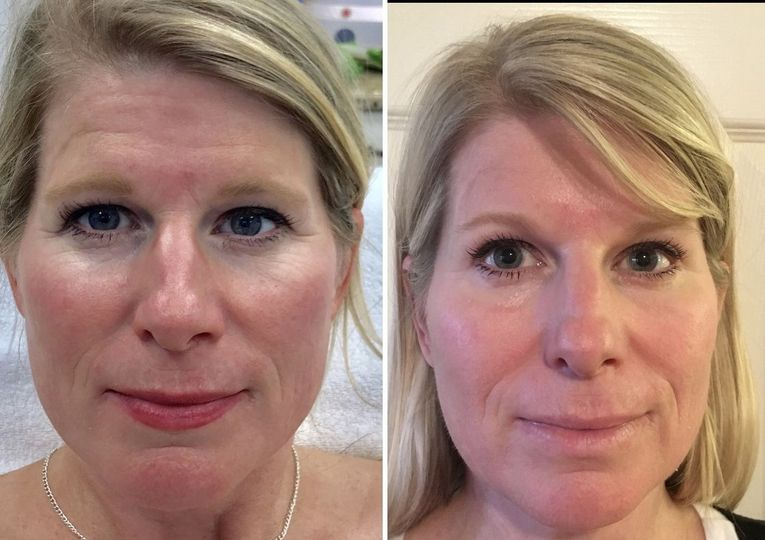 Before and 1 Week After Microneedling & Botox