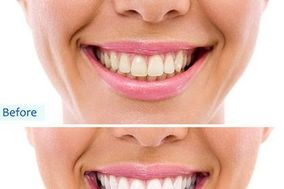 Rowen Dentistry