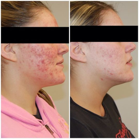 Specializing in Acne Treatments, when you come to us for acne treatment, our aestheticians will work...