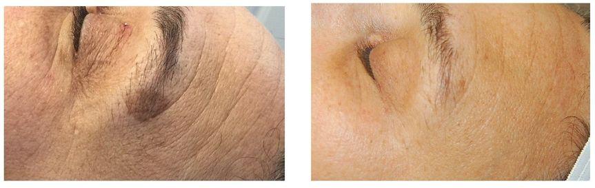 Spot Treatment allows us to diminish spot pigmentation.