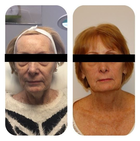 Face Sculpting Treatment, also known as the Natural Face Lift. This is client after 6 treatments....