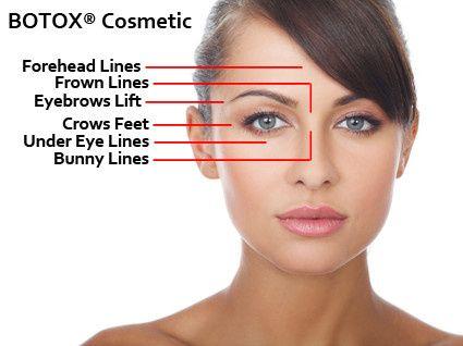 botoxdiagram