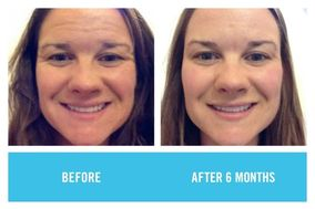 Rodan and Fields Skincare by Mary Ann