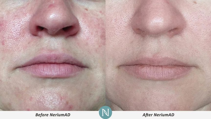 nerium before and after nose