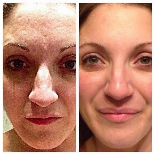 90 days using Nerium Ad! This is what Nerium does for texture issues and large pores. You won't...