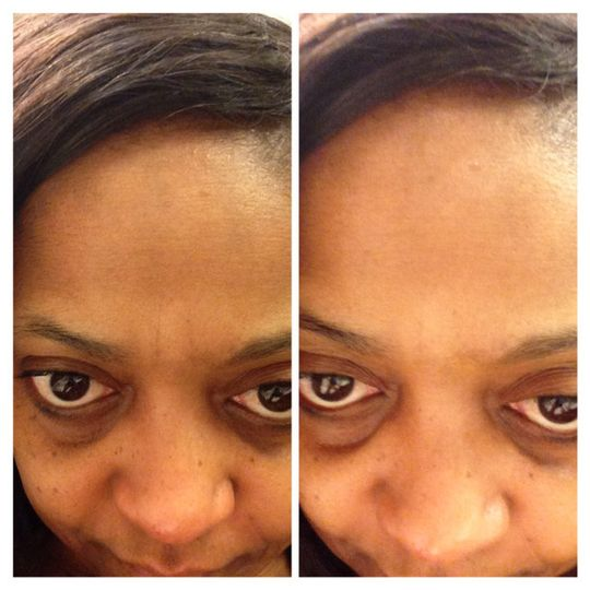 My personal results after using Nerium AD for 10 days. My issues were discoloration around nose,...