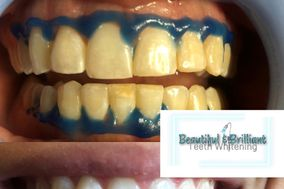 Beautiful & Brilliant Teeth Whitening, LLC.
