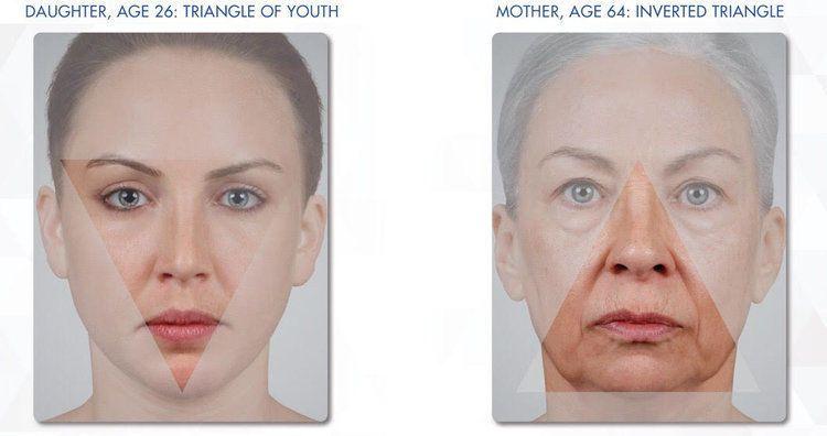 bd212629c1588bca 1524121733 778796e0ae8d51d1 1524121721928 2 Aging Face