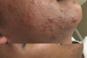 Skin MPLS