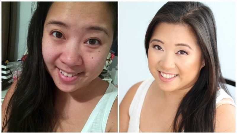 before and after mommy makeover brighter darling