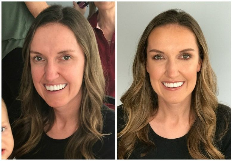 before and after mommy makeover green eyes and br