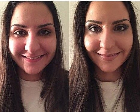 Before and after result