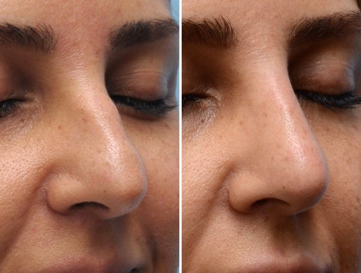 A non-surgical rhinoplasty is a great alternative to traditional rhinoplasty through surgery