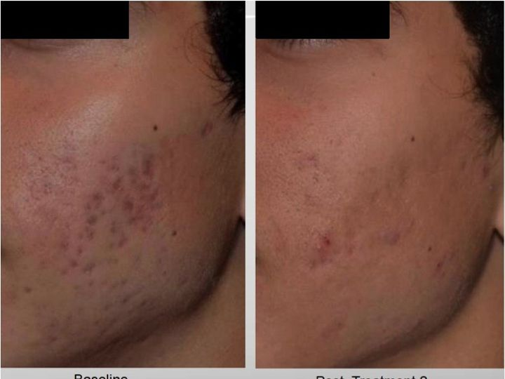 Tmx 1432275552322 Acne Scarringpico San Luis Obispo wedding beauty