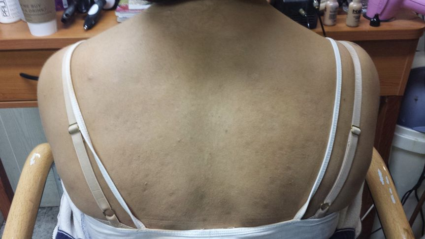 back acne after
