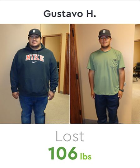Gustavo Before & After
