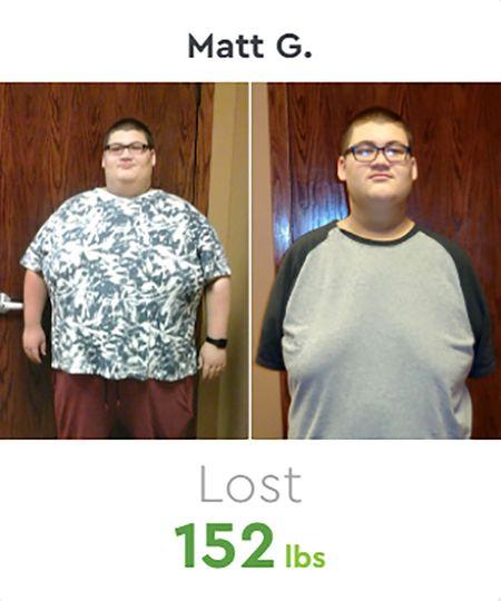 Matt Before & After