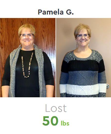 Pamela Before & After