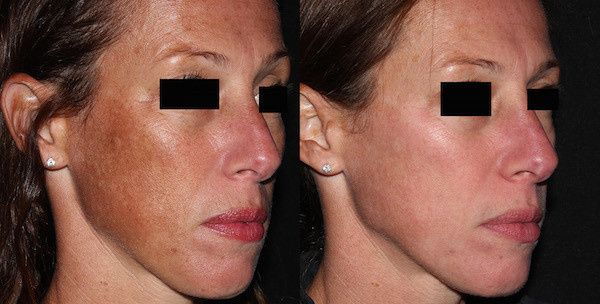 picosure focus before and after