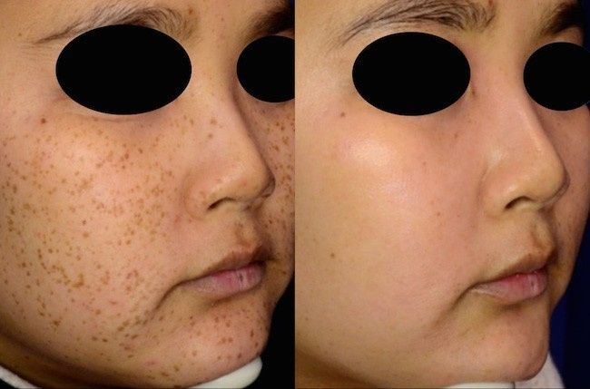 picosure focus before and after 1 e1427722820386