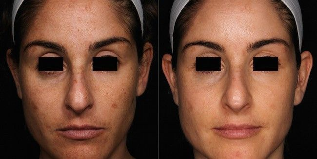 picosure focus before and after e1427722759236