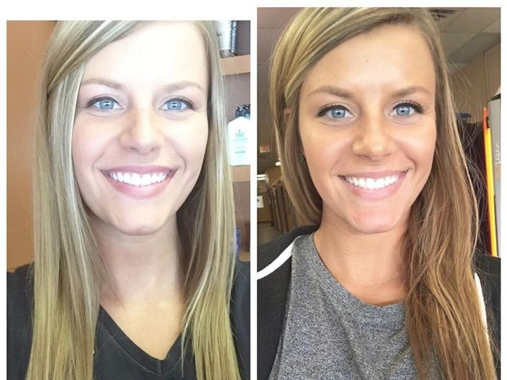 Tmx Spray Before After 51 82634 157799056934032 Toledo, OH wedding beauty