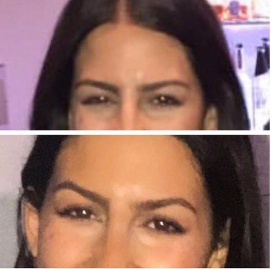 Eye brow lift Botox