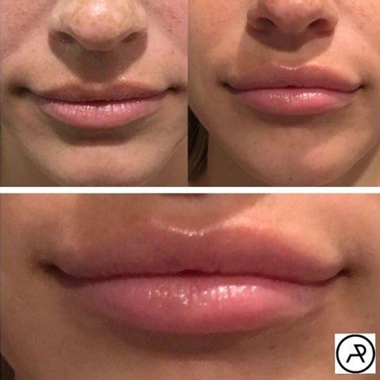 Increase lip size