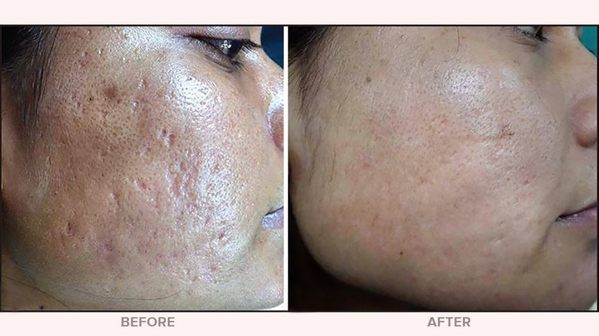 Microneedling - Acne Scarring