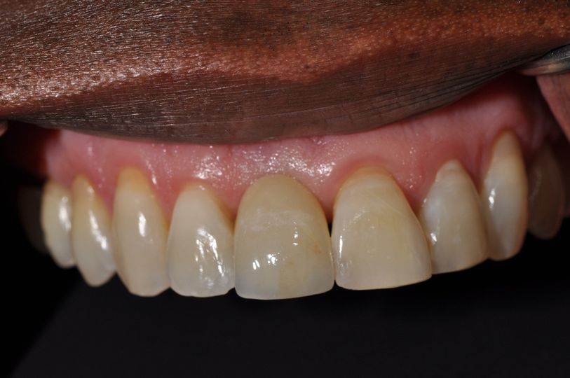 Smile 2: After Implant