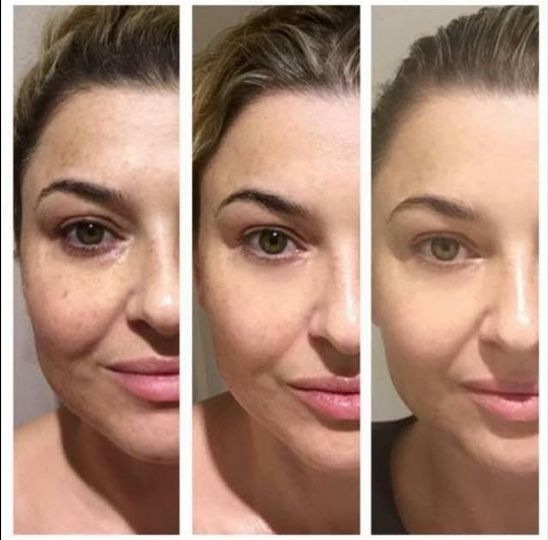Skin is renewed and rejuvenated. Client uses Luminesce products for lasting results: Before-after 30...