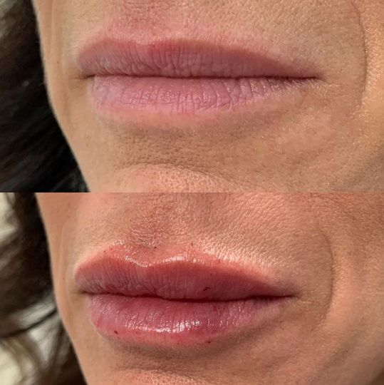 Plumper, more visible lips