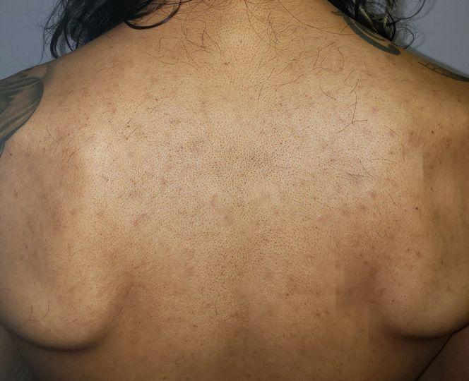 After image of back