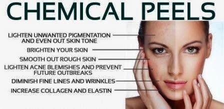 chemicalpeels