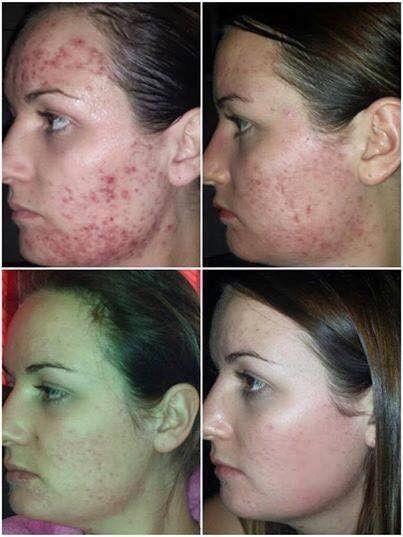 Luminesce Serum Results