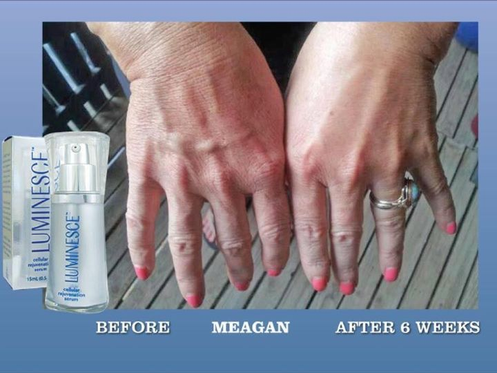 Luminesce Serum - Make those hands younger for those ring pictures!!