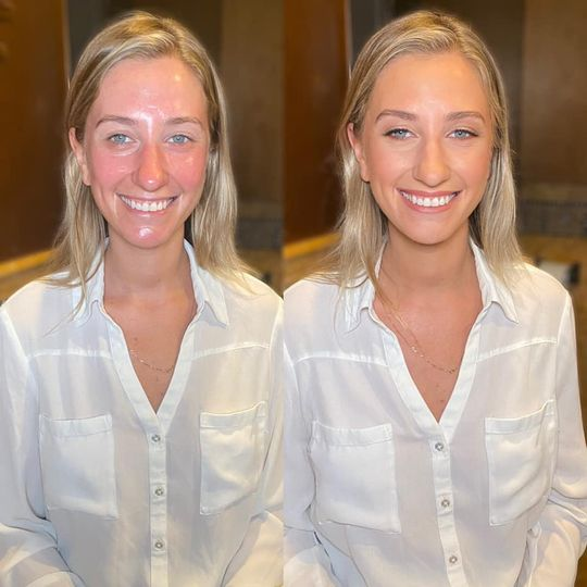 Beautiful before & after