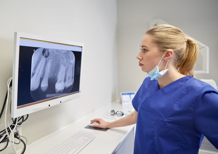 Analyzing the X-ray results