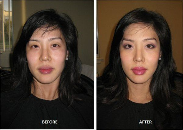 Miss M Before and After