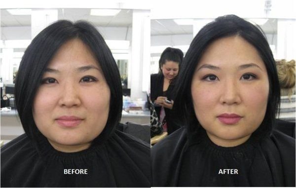 Miss S Before and After