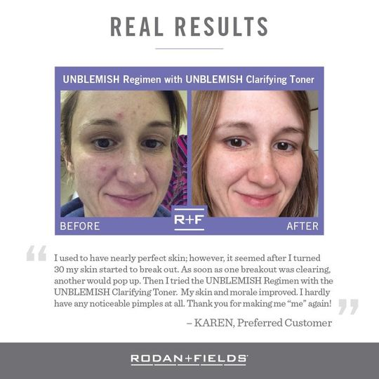 real results unblemish
