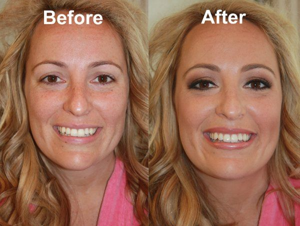800x800 1281494212070 michellewoodwardbeforeafter