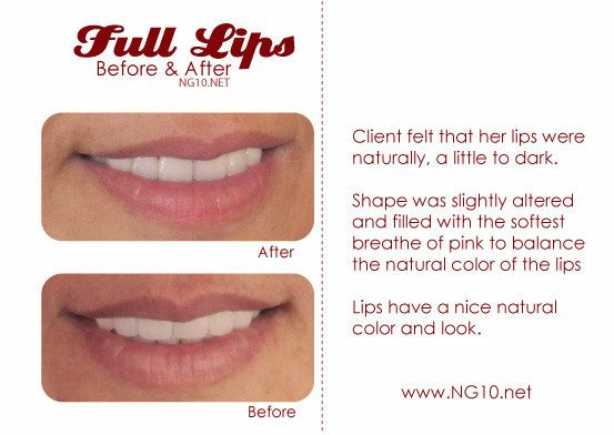 Permanent makeup before and after photo - full lips.