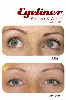 Permanent makeup before and after photo - eyeliner.